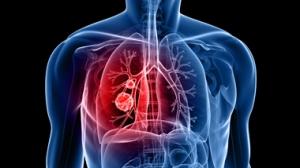 allergic-asthma---380-w-1